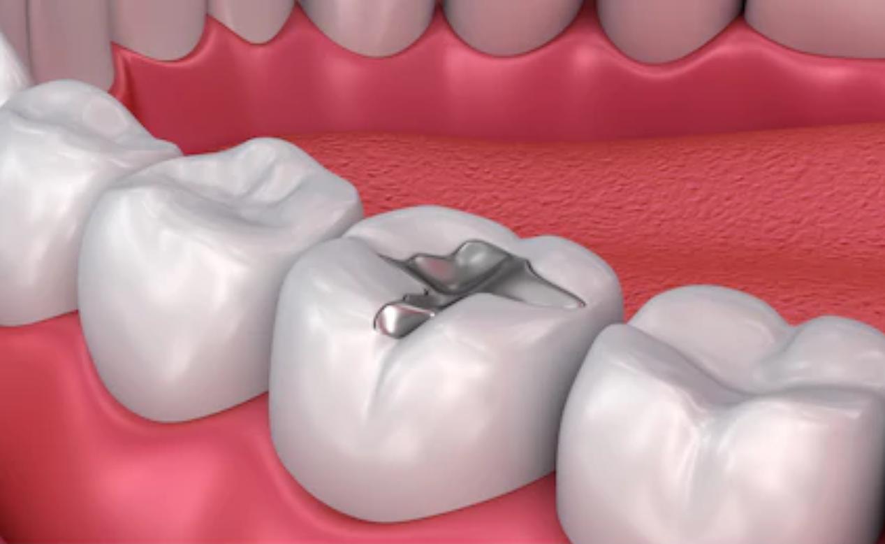 Vers une Calédonie sans amalgames dentaires